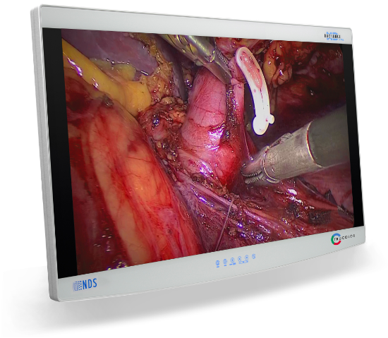 surgical display, display, visualization system, medical grade, UHD, 4K, Ultra High Definition, 4k resolution, monitor, LCD, Video Surgery, Radiance, Radiance Ultra, 12G-SDI, Quad-Link SDI, HDMI, and Display Port