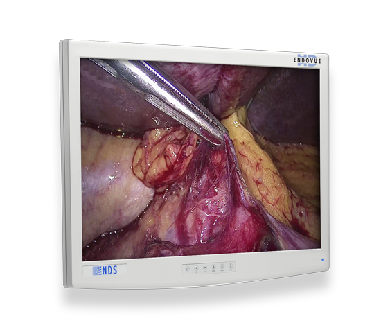 surgical display, display, visualization system, medical grade, UHD, 4K, HD, Ultra High Definition, High Definition, 4k resolution, monitor, LCD, Endoscopy, Laparoscopy, Video Surgery, EndoVue, EndoVue 4K, analog, digital